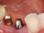 korony na implantach