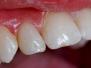 licowka - ząb niewykształcony