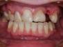 licówki i implant